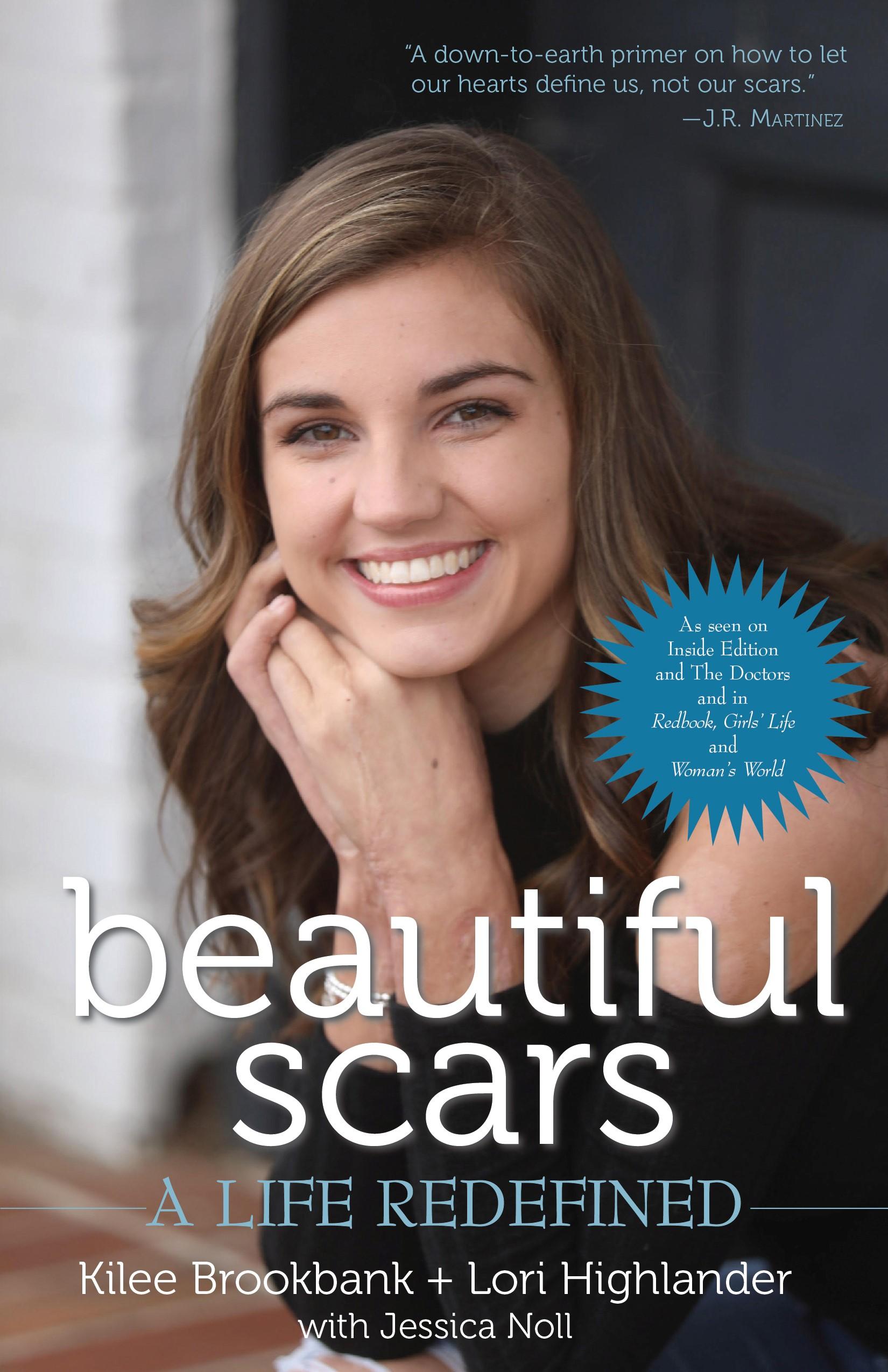 Kilee Brookbank Burn Survivor Beautiful Scars