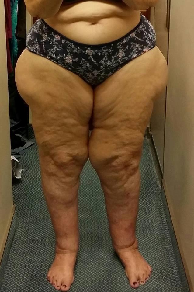 Elizabeth Ayres Legs