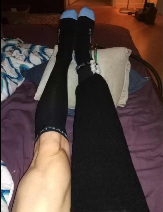 before and after photo of wearing compression socks