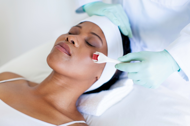 woman lying back with a white handband on as she receives a microneedling treatment