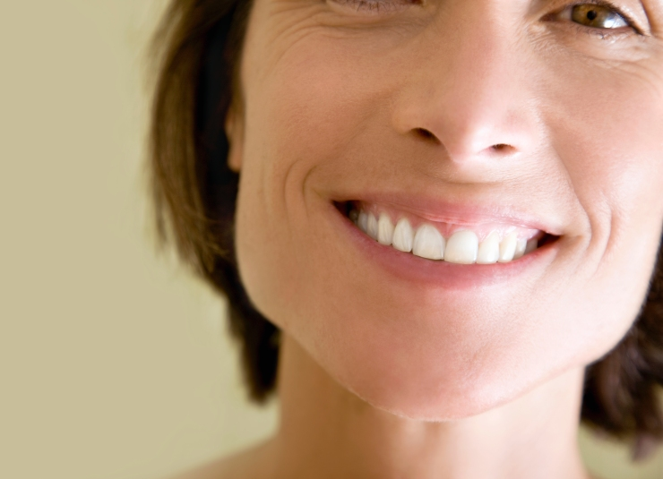 Woman in her 40s smiling with white teeth.