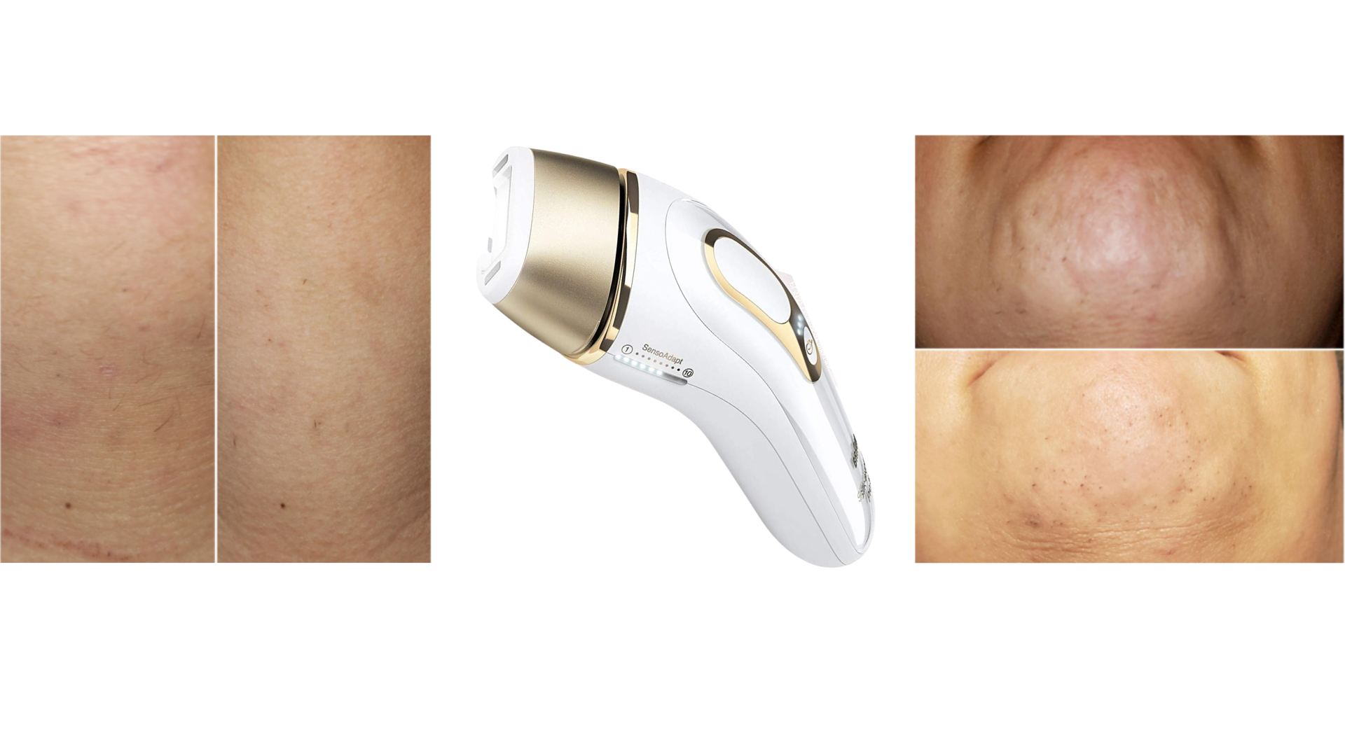 best laser hair removal machines