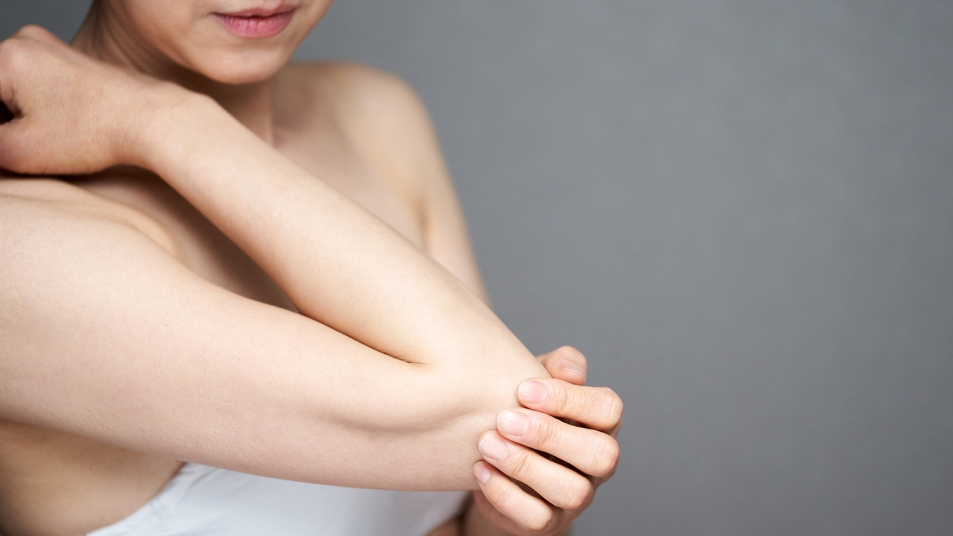 woman smoothing her dry elbows